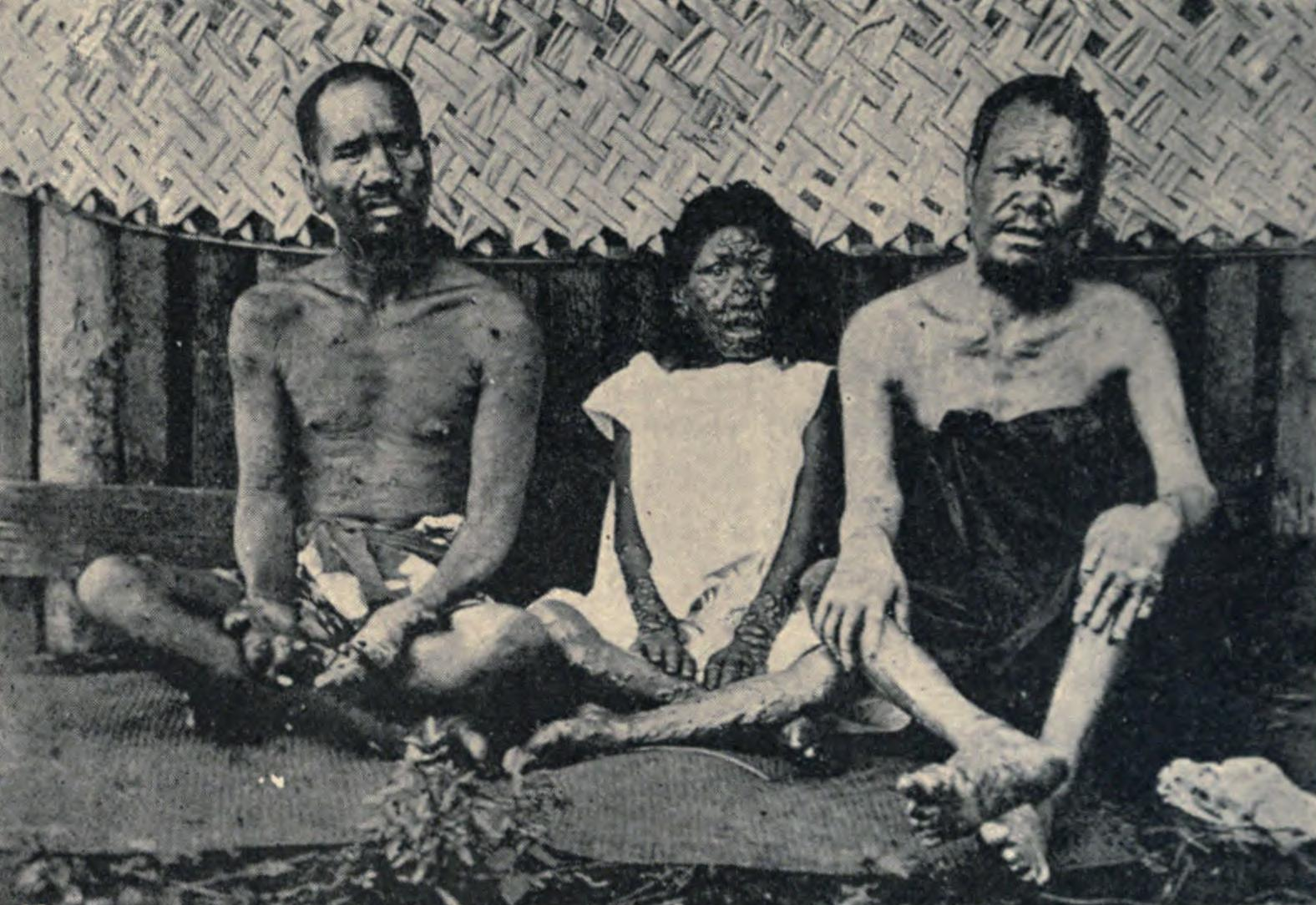 Bodies deformed by Leprosy - Tahiti 1898